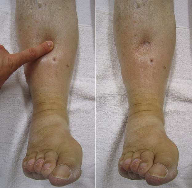 What Are Leg Discoloration and Leg Swelling?