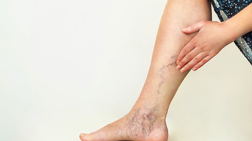 Person experiencing May-Thurner Syndrome symptoms, vissible veins on leg.