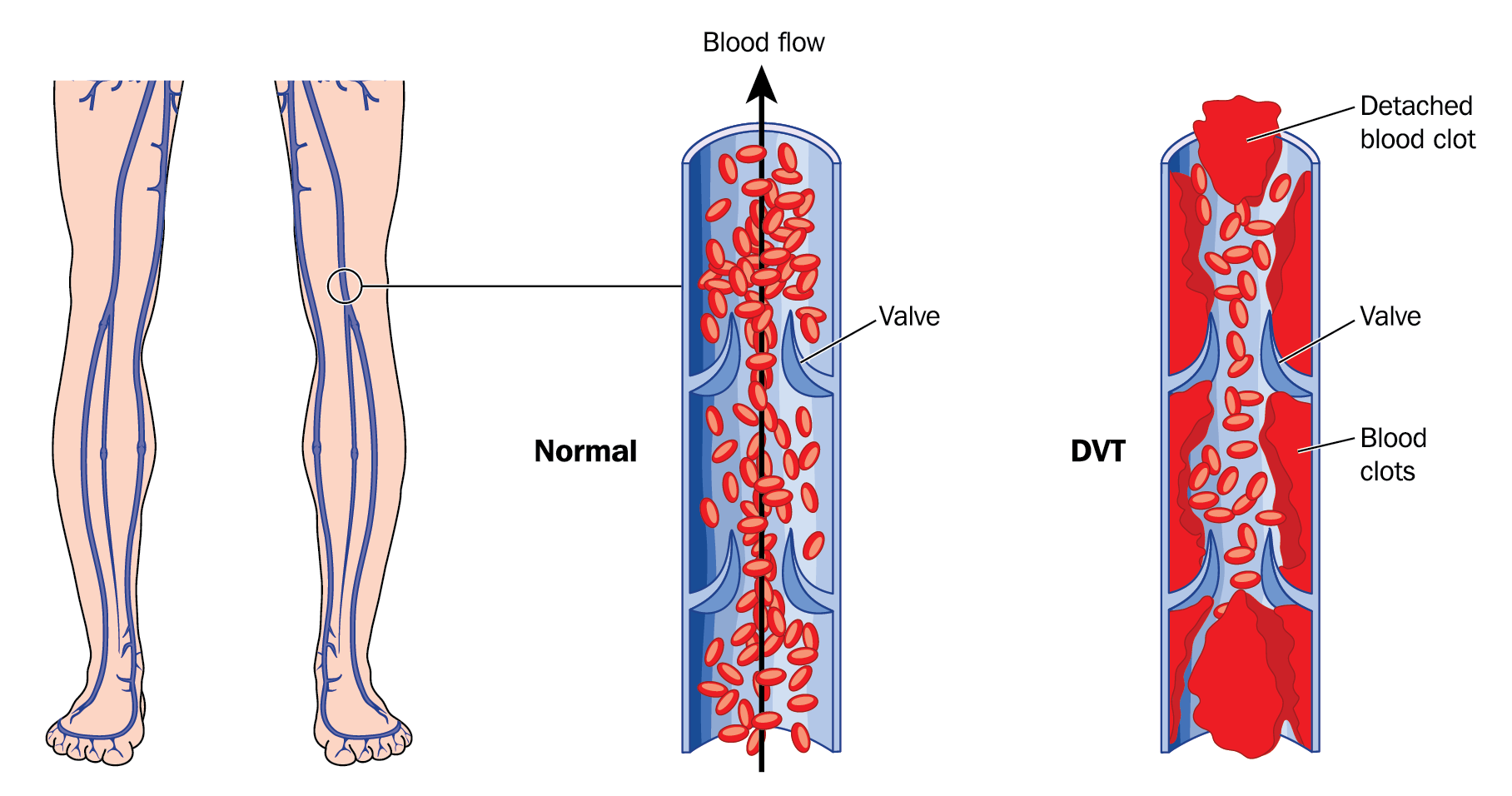 Diagram comparing normal vein to DVT affected vien and importance of leg ulcer treatment